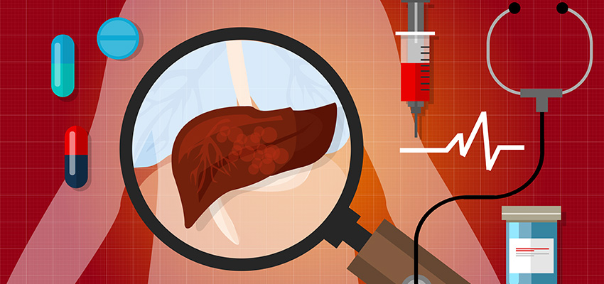 Comprehensive Liver Health Check